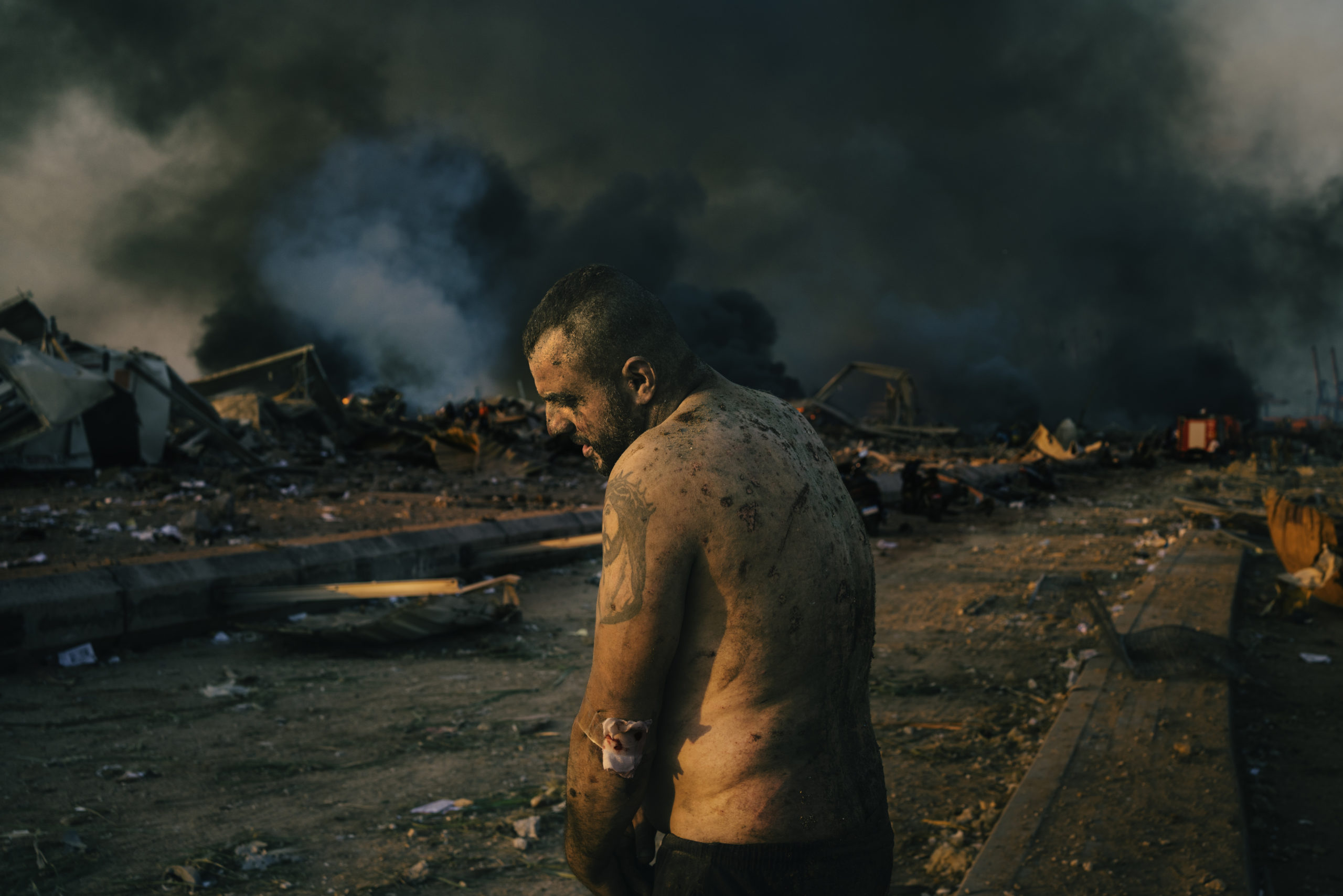 Injured Man After Port Explosion in Beirut © Lorenzo Tugnoli, Italy, Contrasto for The Washington Post